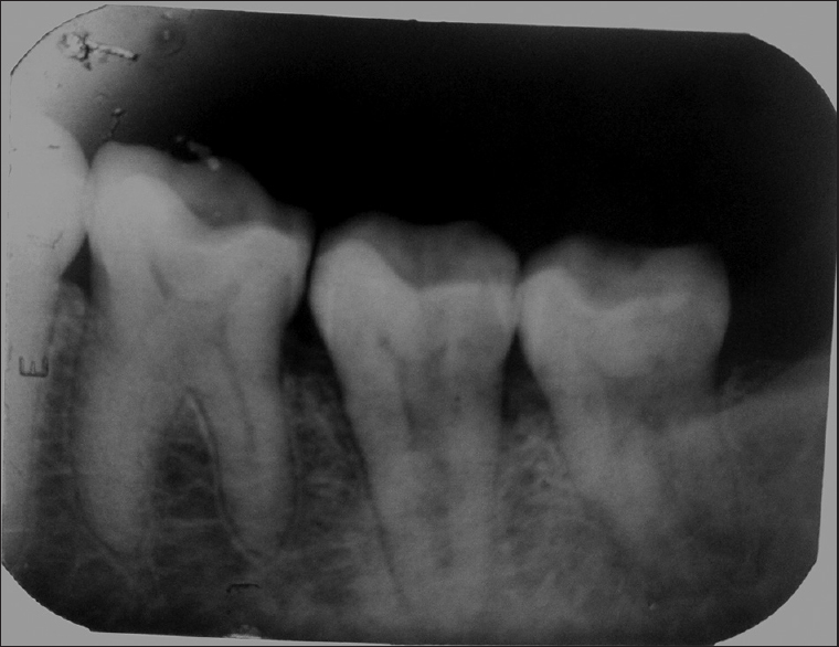 Figure 1: Preoperative radiograph showing single root