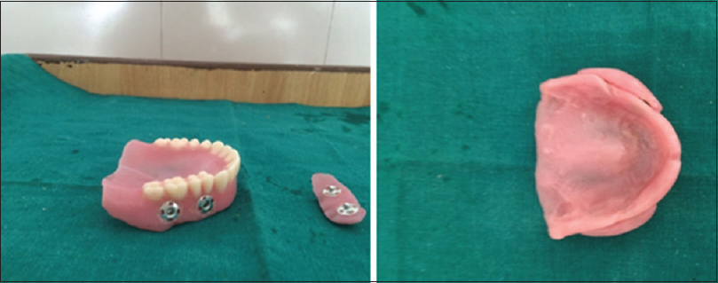 Figure 8: Female part of pushbutton attached to denture base and male part attached to acrylic cheek plumper